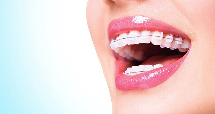 Make your smile brighter using a teeth whitening procedure