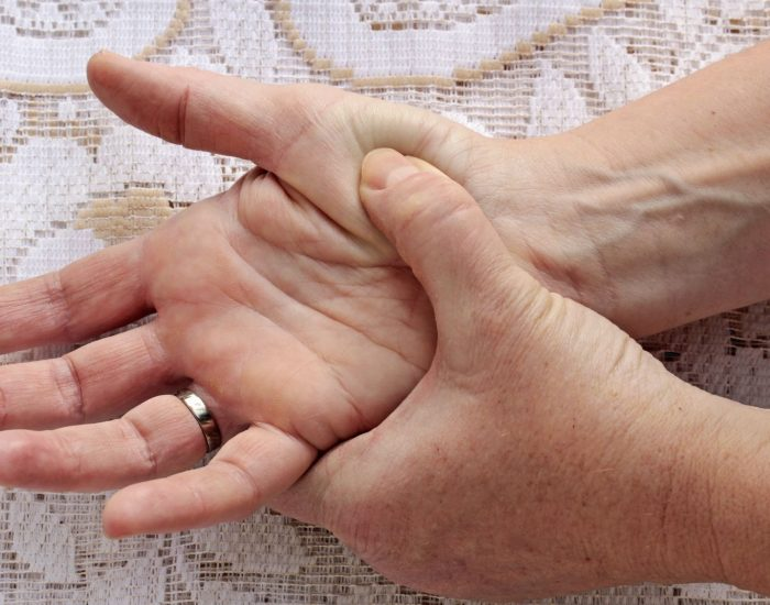 Flourishing Rheumatoid Arthritis Hand Surgeon Houston